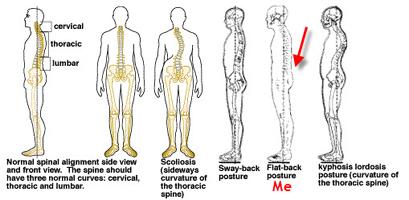 Упражнения при плоской спине