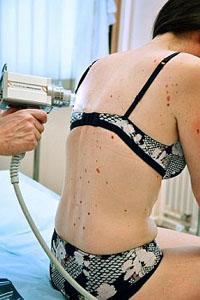 Профилактика туберкулеза кожи