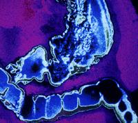 Сифилис тонкой кишки