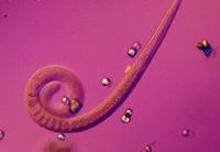 Клиническая картина и диагностика гельминтозов