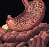 Клиническая картина синдрома золлингера-эллисона
