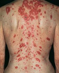 Папуло-некротический туберкулез кожи