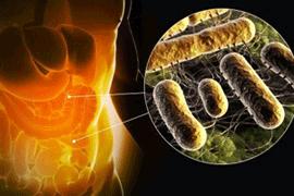 Туберкулез тонкой кишки