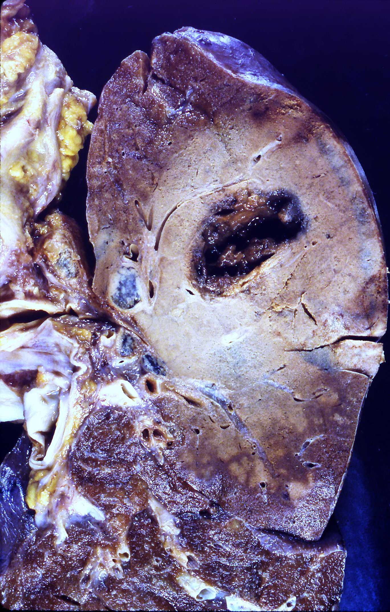 Пневмония Атипичная