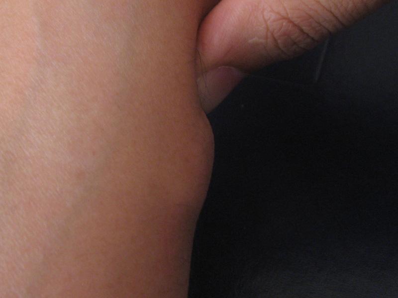 бугорок между ног фото