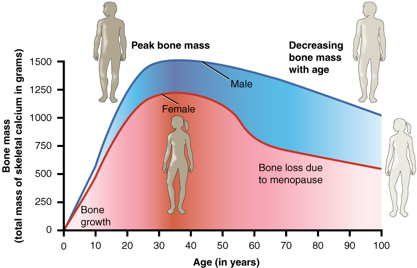a description of a condition hypo gravitational osteoporosis an absolute decrease in the amount of b Gravitational self-force and the e ective-one-body formulation is a mapping between the true dynamics and an e ective description involving an e ective metric.