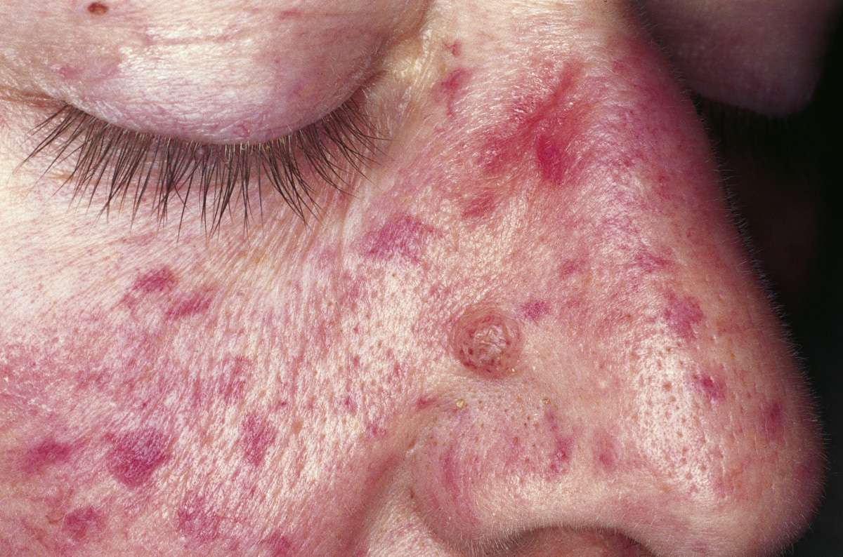 фото рандю ослера болезнь