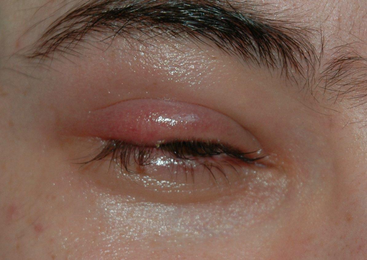Ячмень (болезнь)