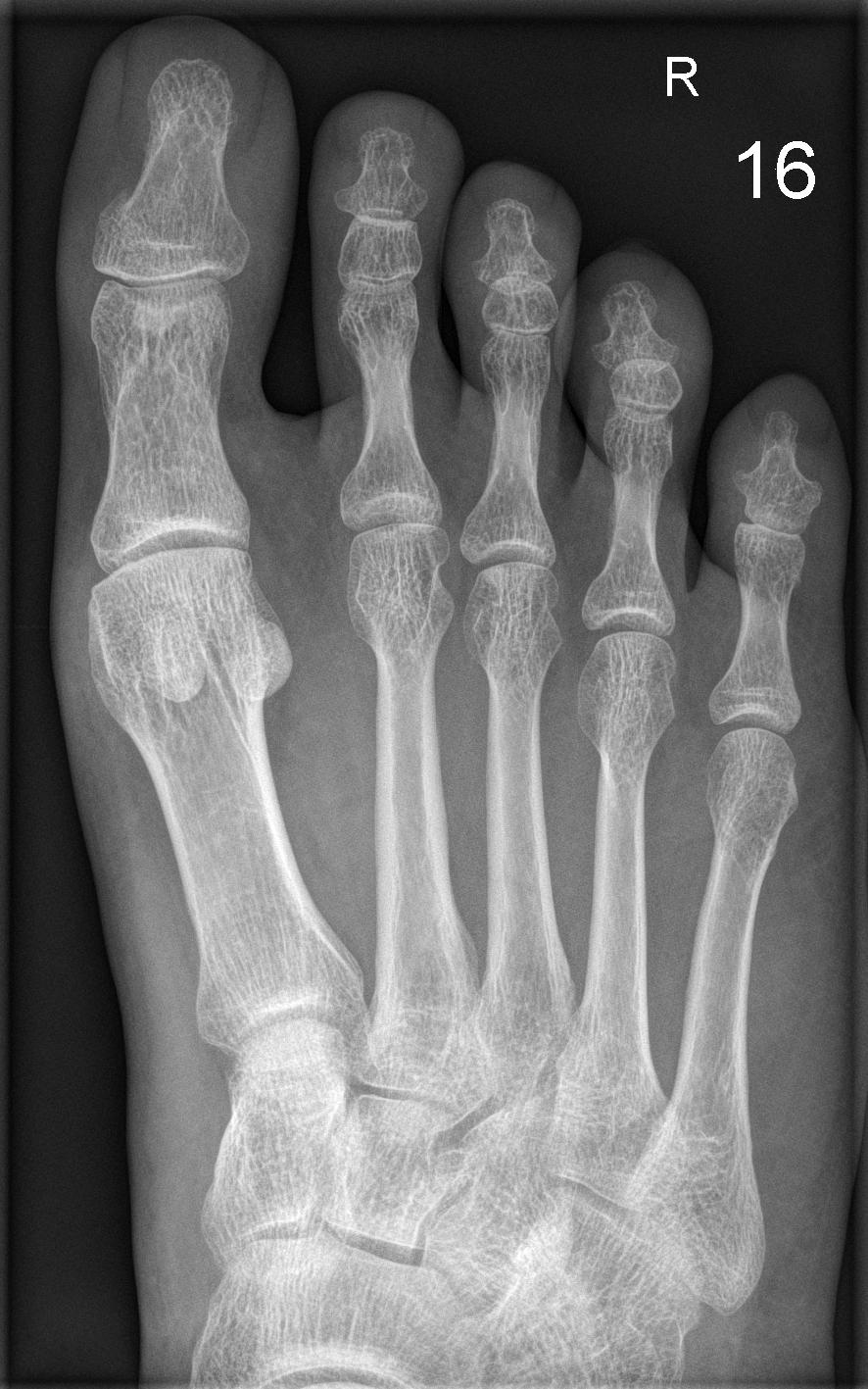 Палец ноги