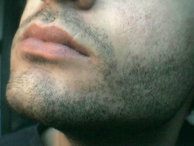 Щетина вид бороды