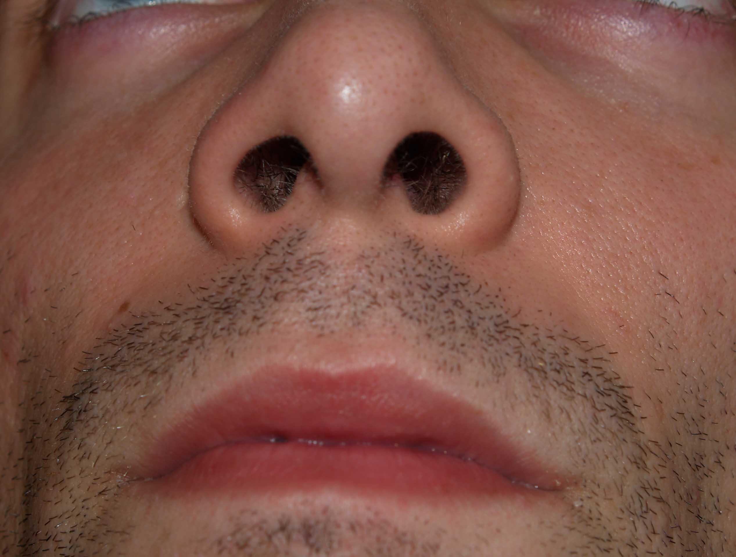 Ноздри