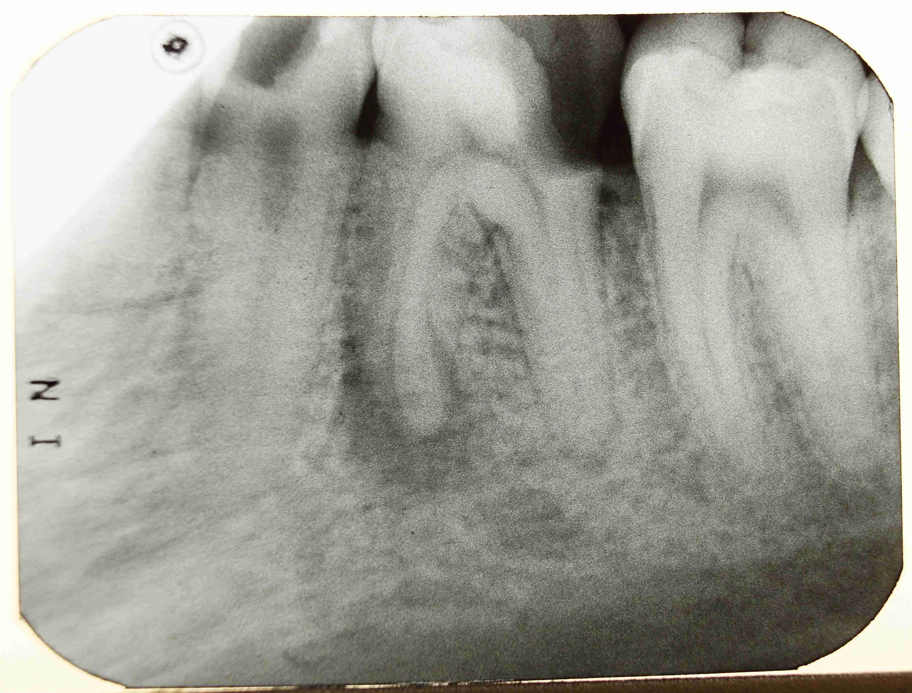 Зубной канал