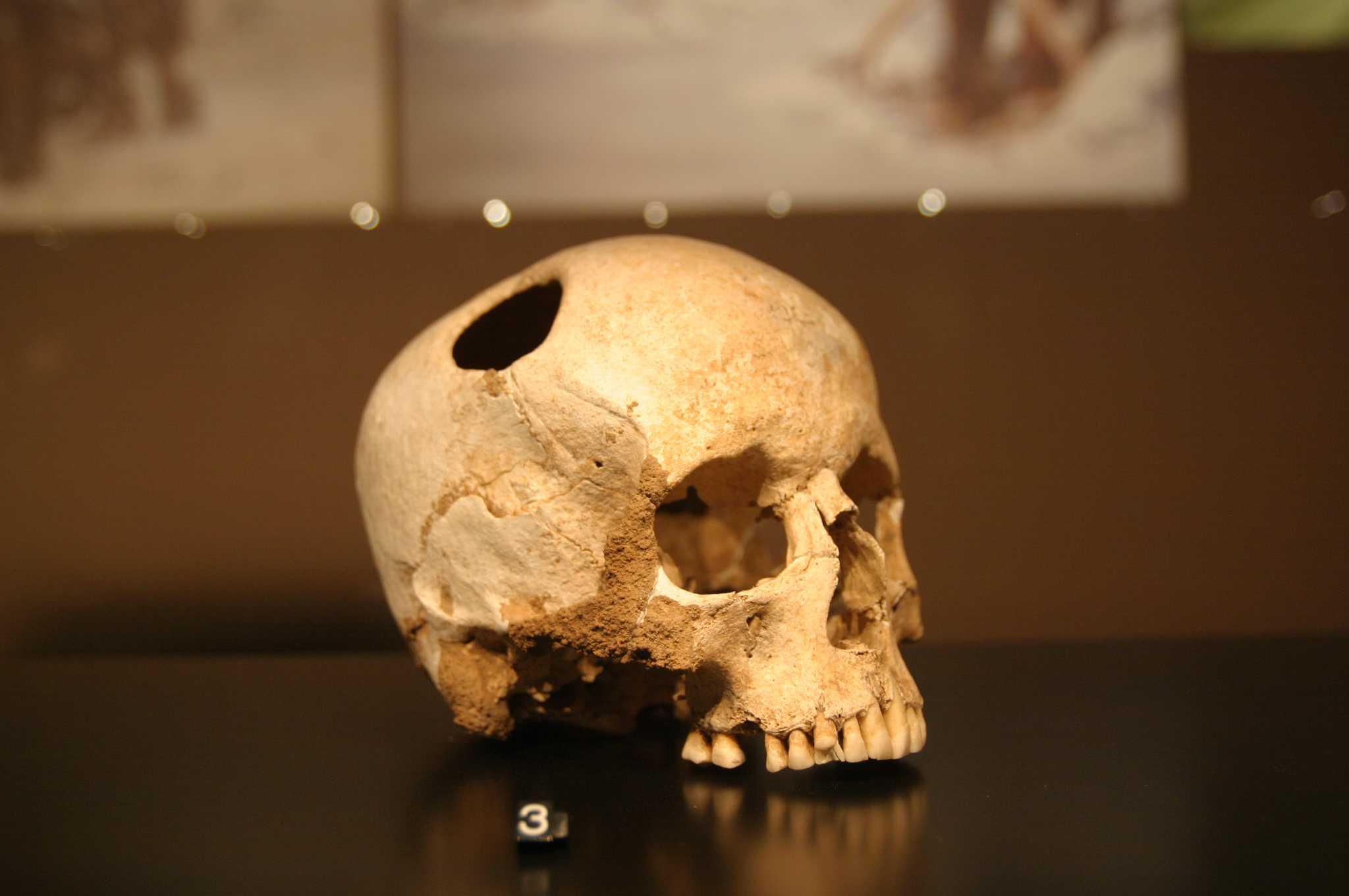 Трепанация черепа