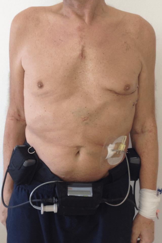 Желудочковый вспомогательное устройство