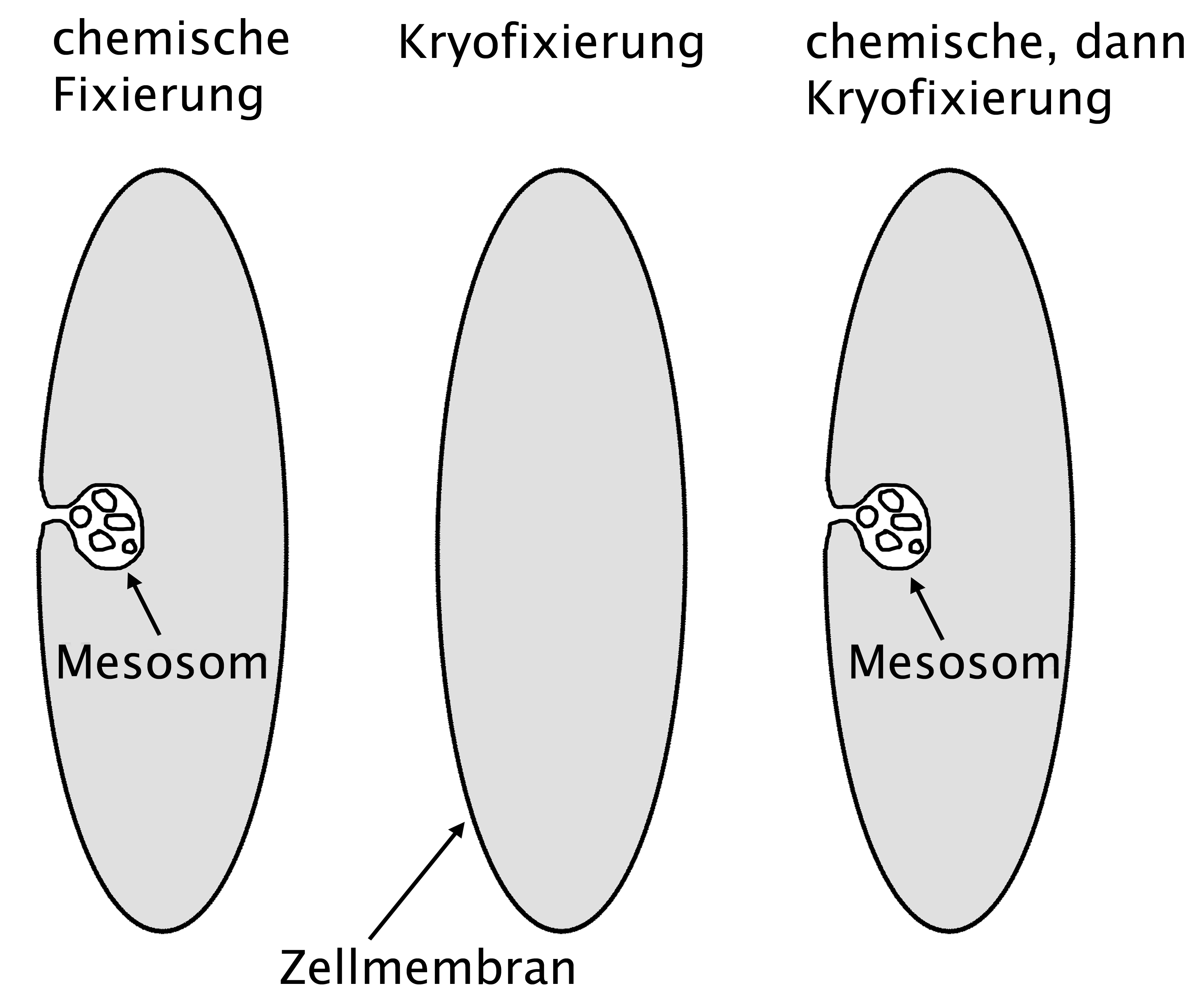 Мезосома