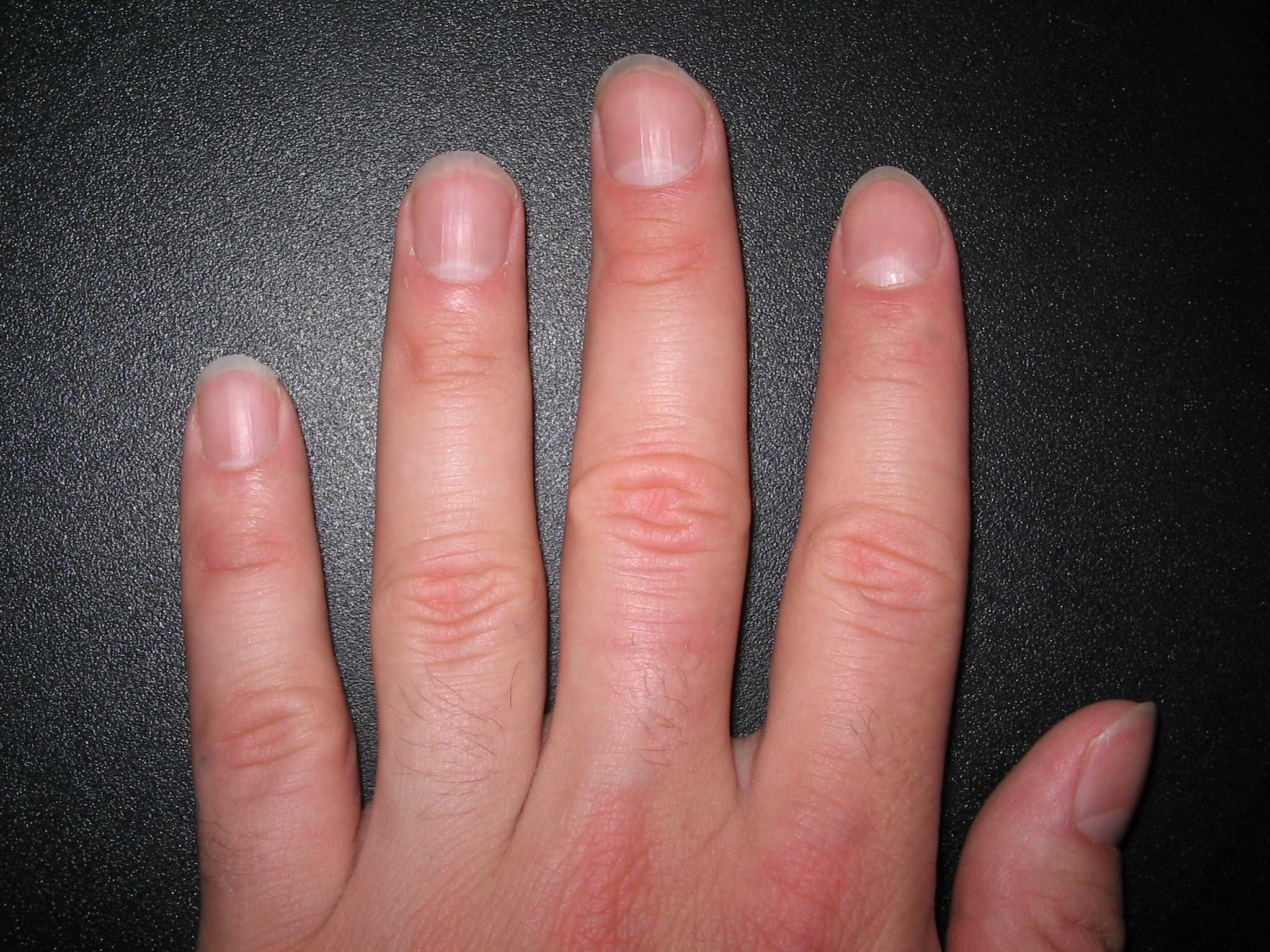 Форма ногтей у детей