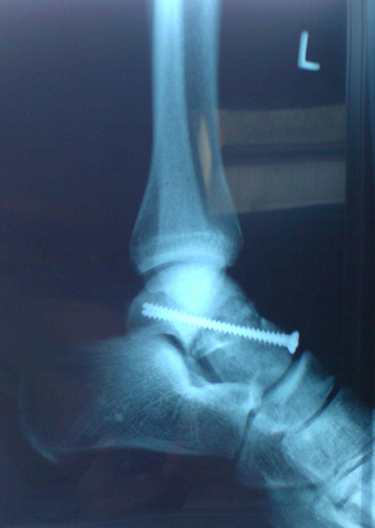 Надпяточной кость