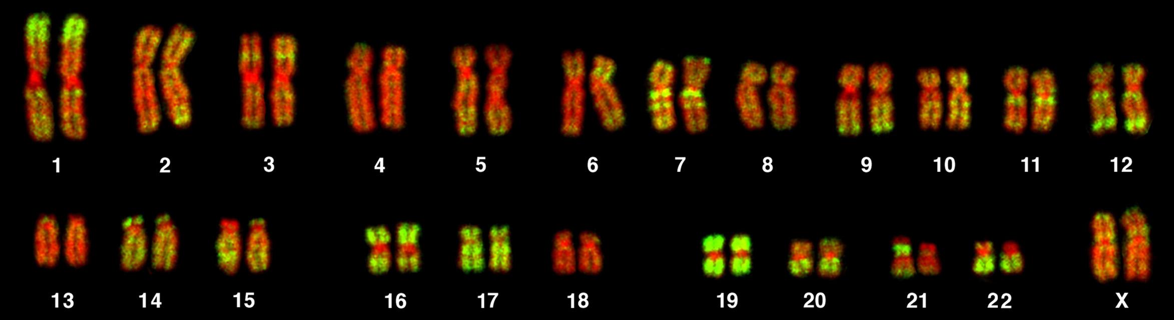 Хромосома