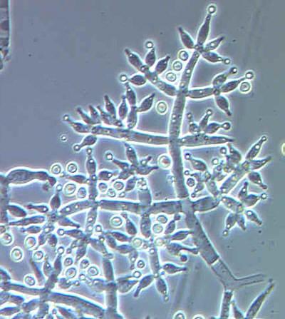 Фазово контрастная микроскопия