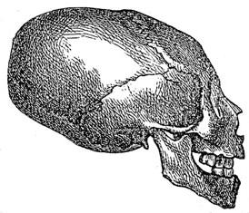 Искусственная деформация черепа