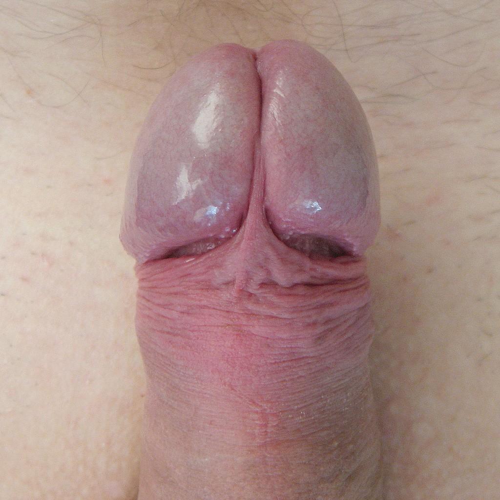 Огромная головка полового члена фото