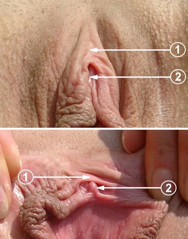 Average size clitorises clitoris pictures black