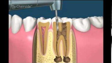 Photo of Зубной канал