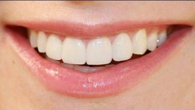 Photo of Зубная эмаль