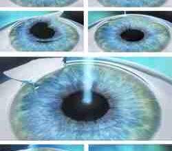 Photo of Фемто Ласик: самая современная и уникальная методика лазерной коррекции зрения