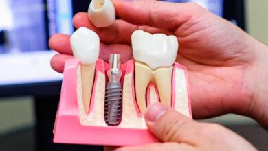 Photo of Почему стоит выбрать имплантацию зубов?