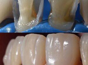 Photo of Способы восстановления утраченных зубов