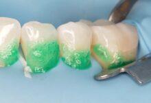 Photo of Современные методы лечения кариеса зубов