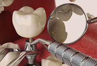 Photo of Современные методы имплантации зубов