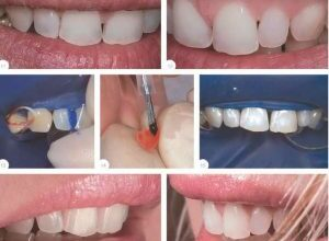Photo of Виниры на зубы: процесс установки