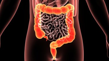 Photo of Воспалительные заболевания кишечника: как проявляется заболевание?