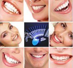 Photo of Востребованность услуги отбеливания зубов