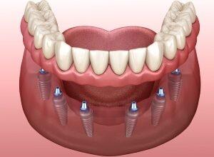 Photo of Имплантация зубов: процедура, позволяющая успешно решать проблему адентии