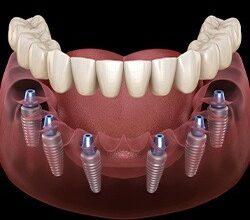 Photo of Имплантация: наиболее эффективный вариант восстановления целостности зубного ряда