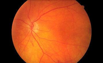 Photo of Как предотвратить дегенеративные заболевания сетчатки глаза