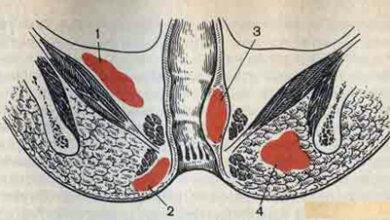 Photo of Особенности лечения острого парапроктита