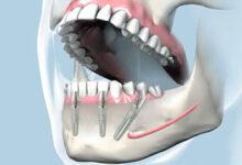 Photo of Имплантация зубов за 1 день: возможно ли это?