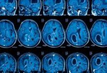 Photo of Когда назначают МРТ головного мозга?