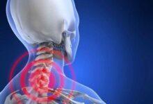 Photo of Боли в шейном отделе позвоночника