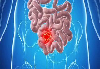 Photo of Рак тонкого кишечника: симптомы болезни