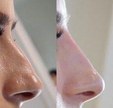 Photo of Как проводится контурная пластика носа?