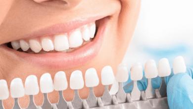 Photo of Чем занимается эстетическая стоматология?