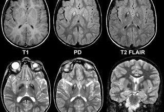 Photo of Какие болезни головного мозга показывает магнитно-резонансная томография в Новосибирске?
