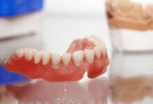 Photo of Зубные протезы: аспекты выбора