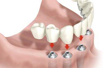Photo of Имплантация: надежный и универсальный способ восстановления потерянных зубов