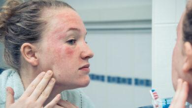 Photo of Как ухаживать за кожей при атопическом дерматите